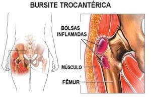 Imagen Bursitis Trocantérica